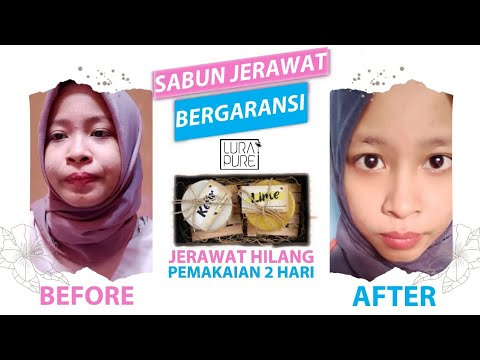 ✨HONEST REVIEW! SABUN LURAPURE PENGHILANG JERAWAT | ADA GARANSI KALO JERAWAT GAK ILANG! | Kosmetik- Klinskin Beauty Soap