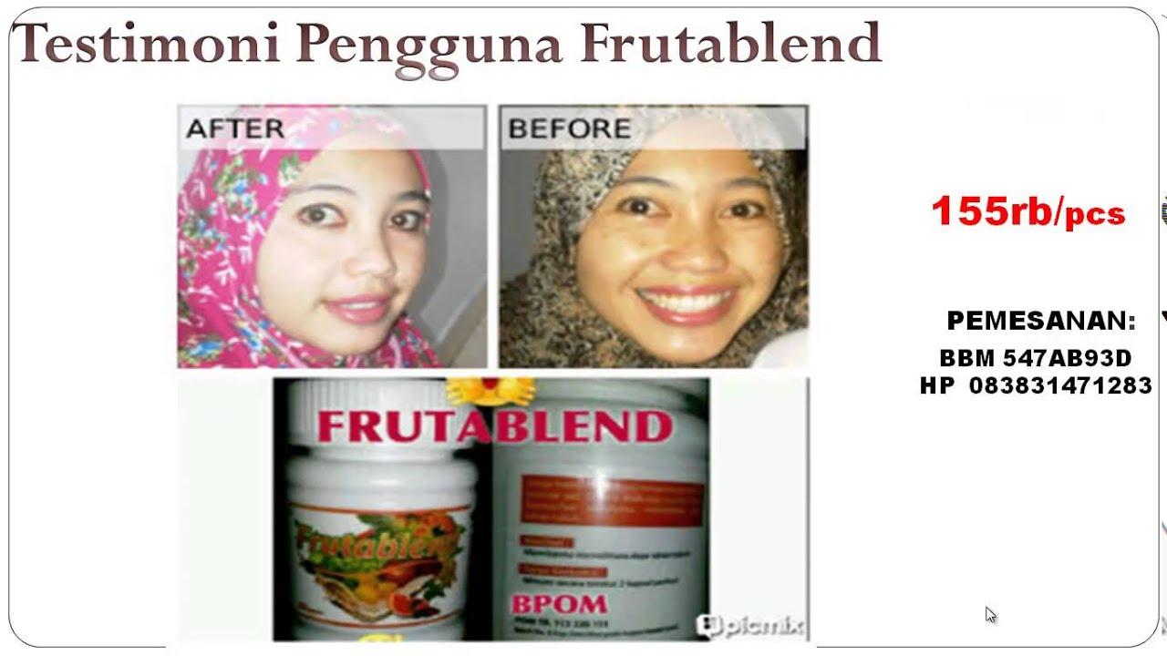 Jual Frutablend Pemutih Kulit Penghilang Jerawat Original Harga Murah Asli Batam HP 083831471283